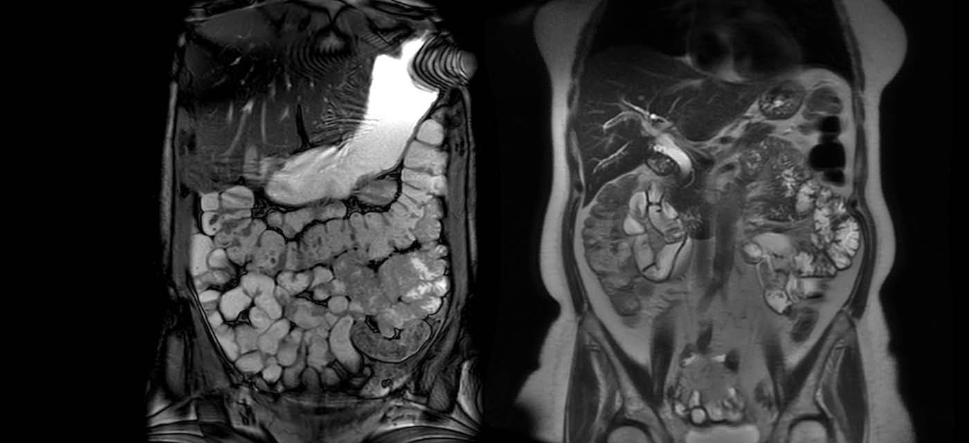MRI enterography image of a persons torso showing their organs