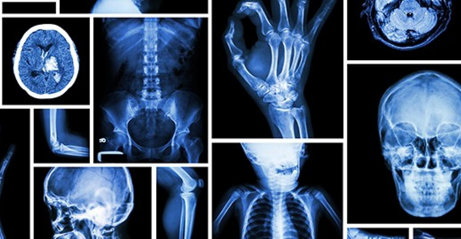 images of general x-ray
