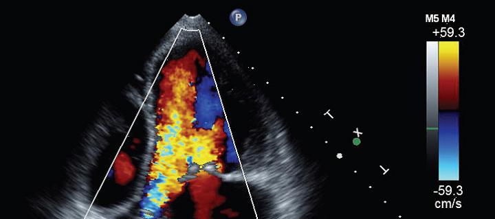Echocardiogram screen for assessing heart function