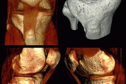 3D image of bones