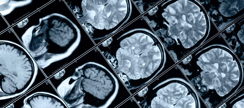 Sheet of head scans