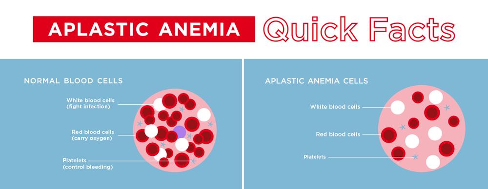 Aplastic Anemia Ilustration DKMS