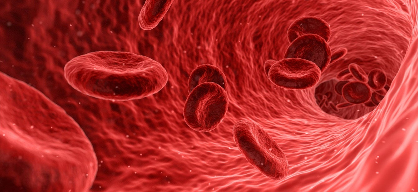 Computerized image of the bloodstream for someone who has diabetes.