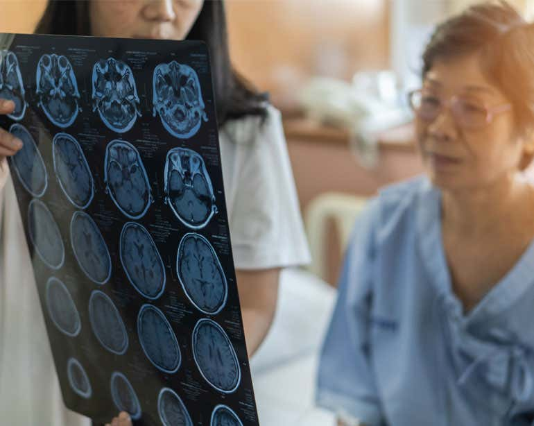 A doctor and a senior Asian woman are looking at their MRI results and considering options for her chronic condition.