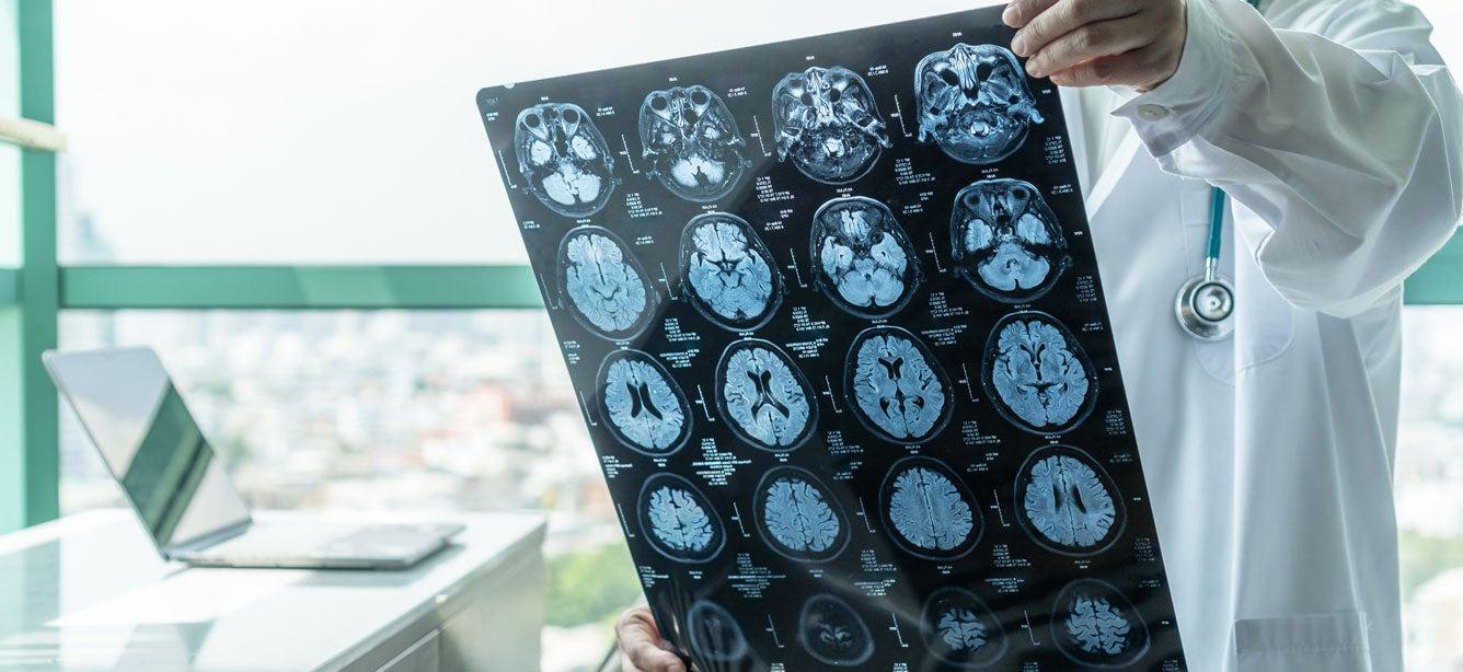 A medical doctor holds Magnetic Resonance Imaging (MRI) film diagnosing a brain disease.